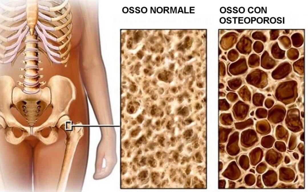 Cos'è l'osteoporosi?